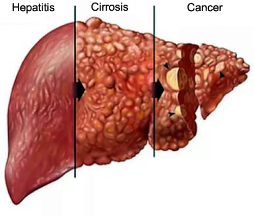 You are currently viewing Liver Disease Symptoms